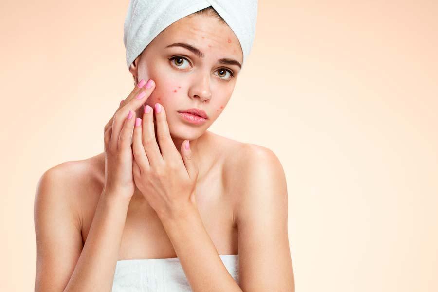 nd yag laser active acne